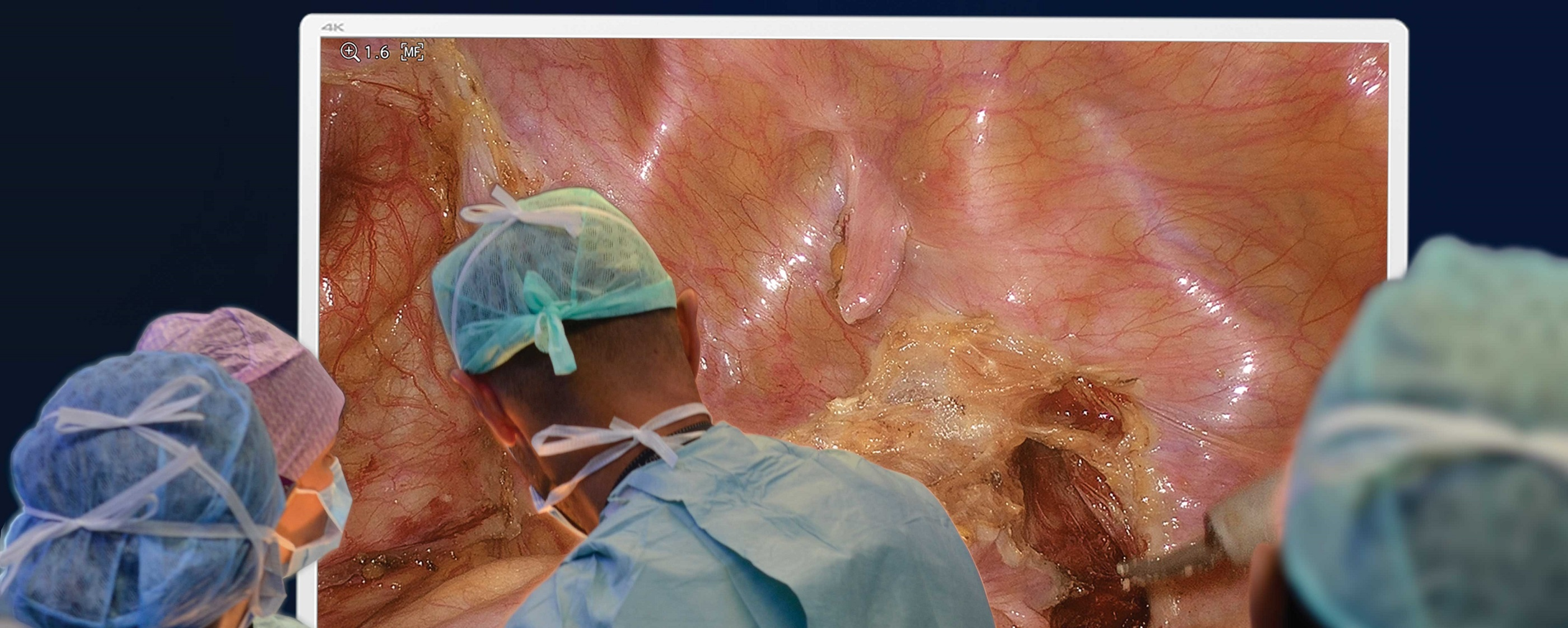 55-inch-clinical-image_bleed_sharp_crop.jpg
